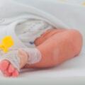 Error neonatología